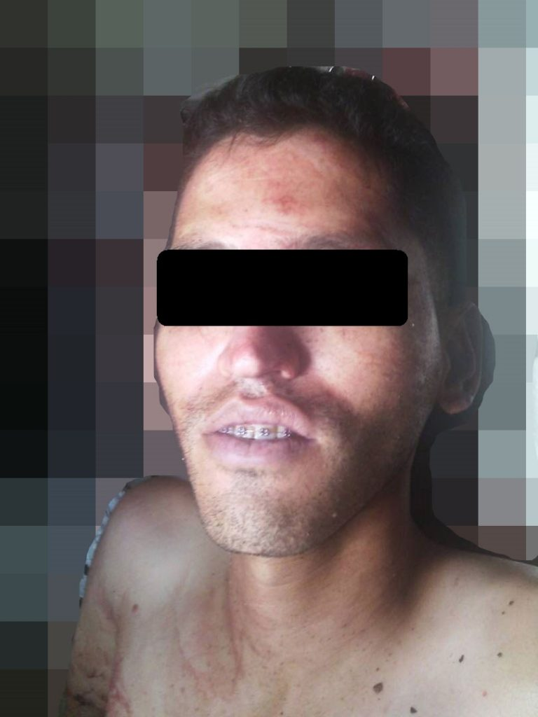 el atracador abatido,  quedó identificado como Gamarra Torres Emigdio Enrique de 28 años de edad, era  oriundo de Calabozo y residenciado en la urbanización Los Pinos.