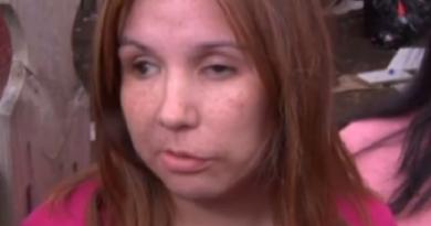 Hombre que intentó sacarle los ojos a su ex mujer, recibe una rebaja en su condena
