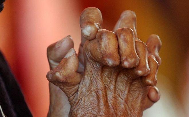 recientemente, Estados Unidos también confirmó algunos casos de lepra
