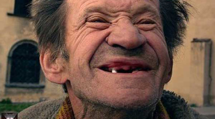 Venezolanos sin dientes, ante escasez de material odontológico