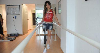 Argentina que necesitaba una prótesis de pierna, usó las redes sociales para conseguirla