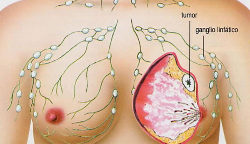 Estudio revela que consumo de anticonceptivos hormonales incrementan riesgo de cáncer de mama