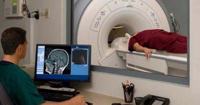 Las lesiones cerebrales pueden conllevar a cometer delitos