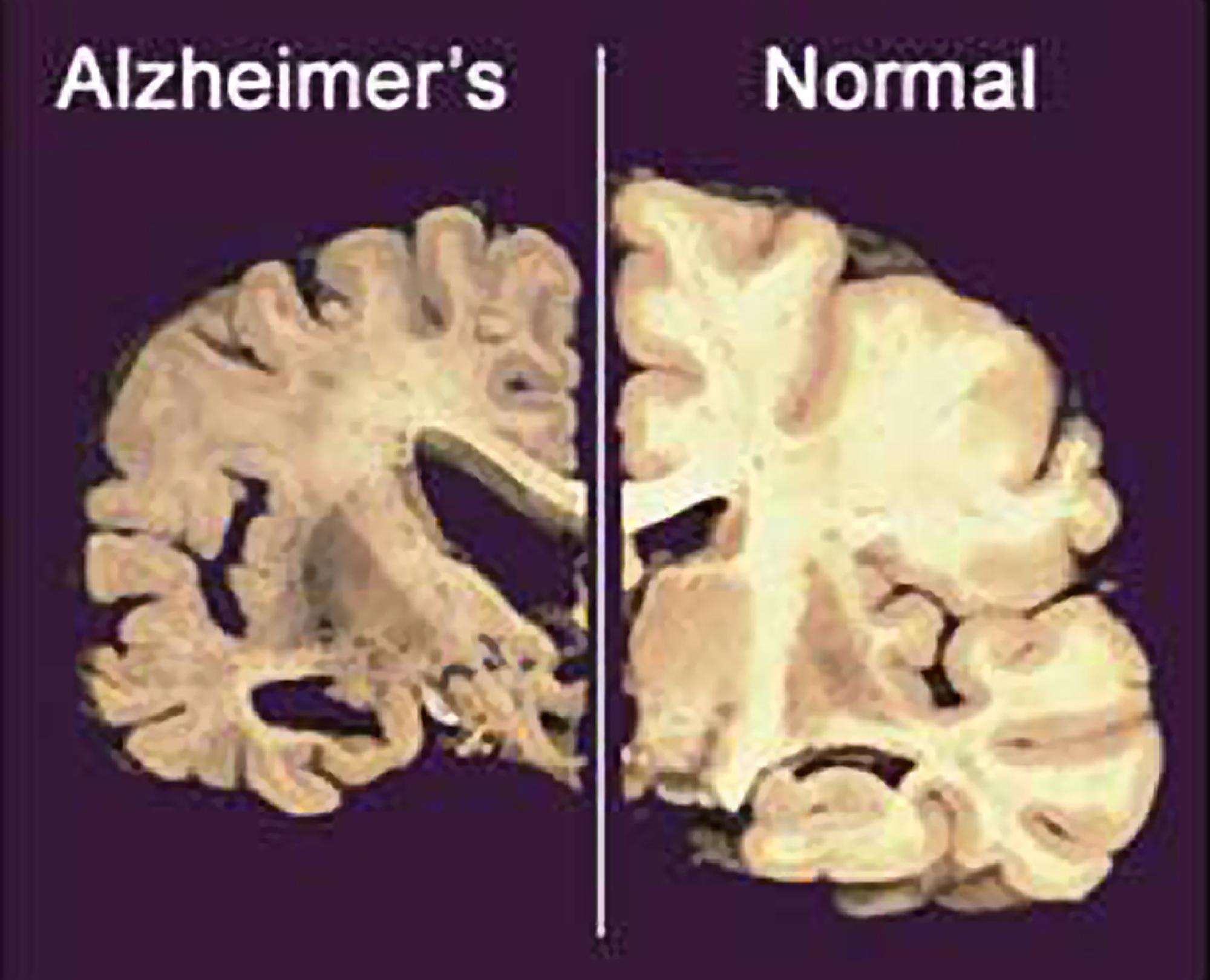 nadie sabe con certeza por qué se desarrolla la enfermedad del Alzheimer. Existen cientificos que manifiestan que la misma se  asocia a la acumulación de un tipo de proteínas en el cerebro; llamadas beta amiloide y tau