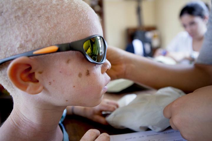 Otra de las superticiones es que se cree que mantener sexo con una albina, se curaría del SIDA