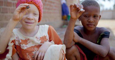 Raptan y matan a niño albino en Mozambique