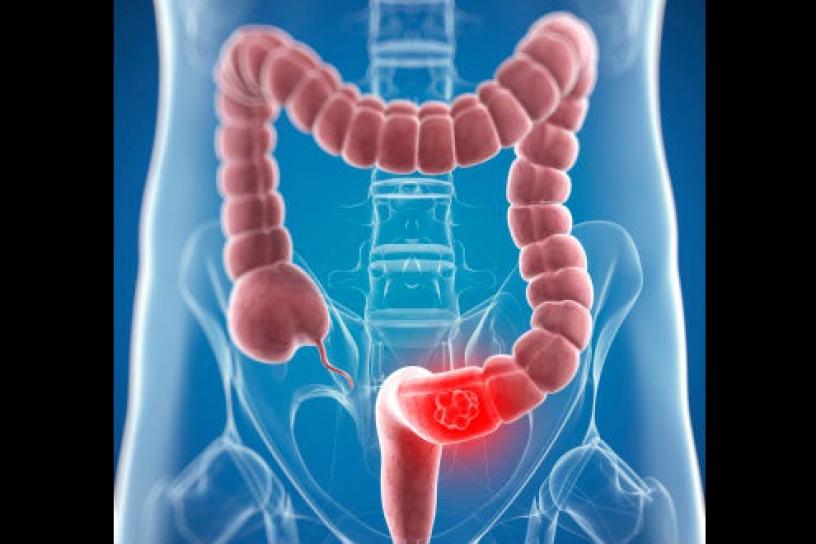 El síndrome de Lynch esta asociado a varios tipos de cáncer hereditarios